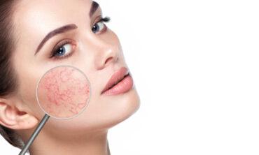 Dermalogica Live – SOS bei empfindlicher Haut